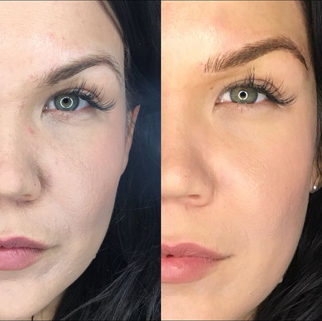 Remember this beauty__!! Check out her HEALED brows on the video!!!