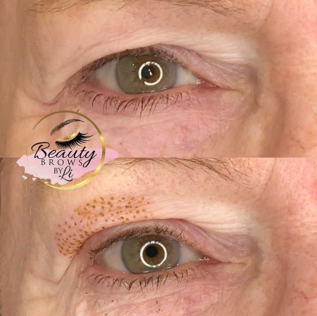 Photos of client are taken immediately after the procedure! Incredible 😍