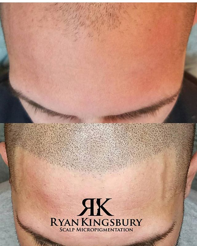 This is SMP scalp micropigmentation!!! H
