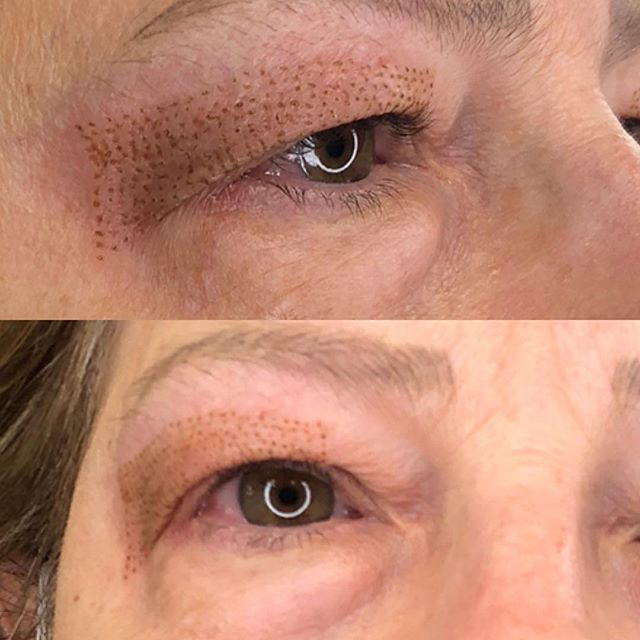 Doing some hooded eyelid lifts today at Beauty Brows! Plasma fibroblast is the non invasive, non sur
