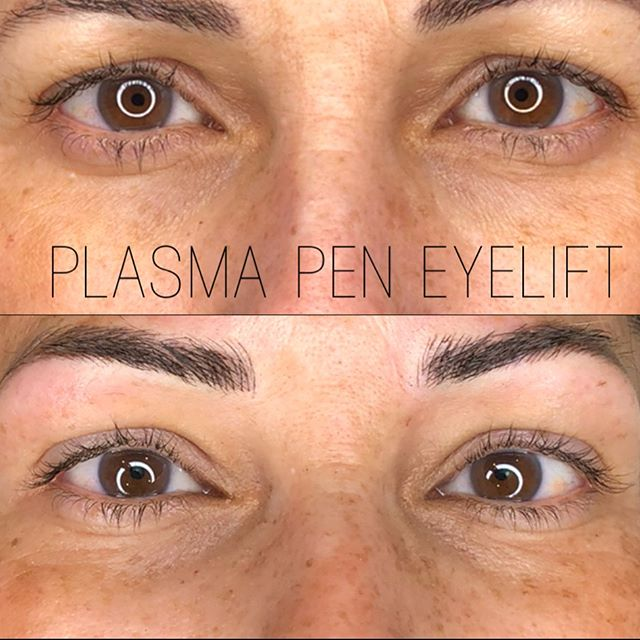 Plasma Pen is the amazing, non invasive treatment that causes your body to NATURALLY produce collage