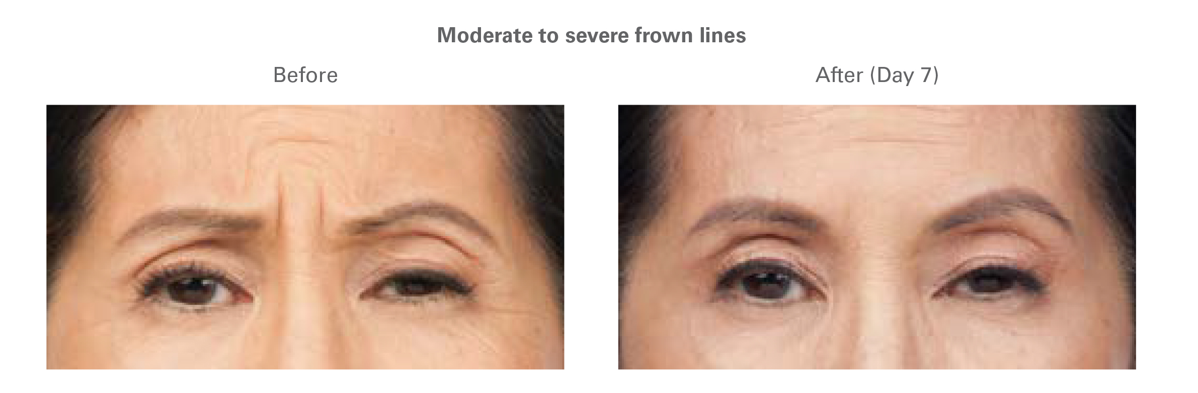 botox for frown lines in north dallas 3