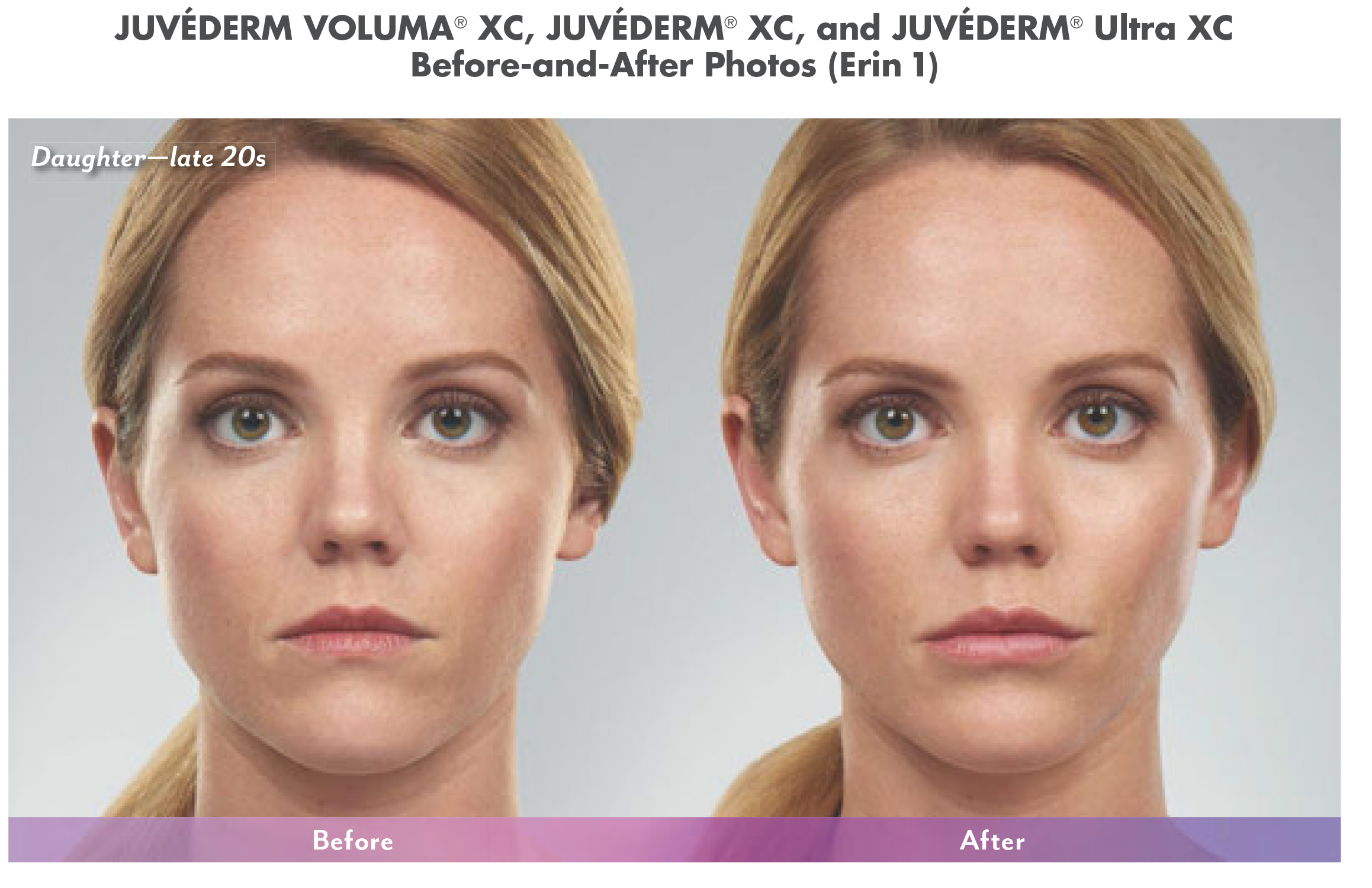 cosmetic fillers before and after in north dallas