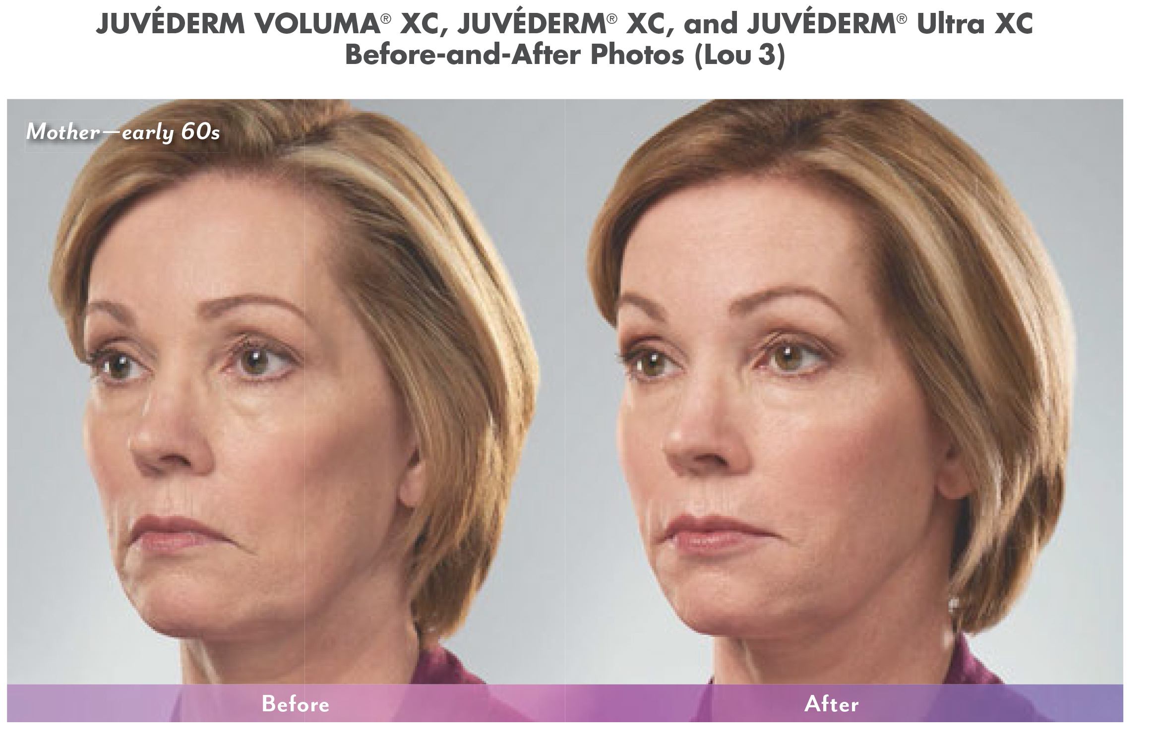 cosmetic fillers before and after in north dallas 5