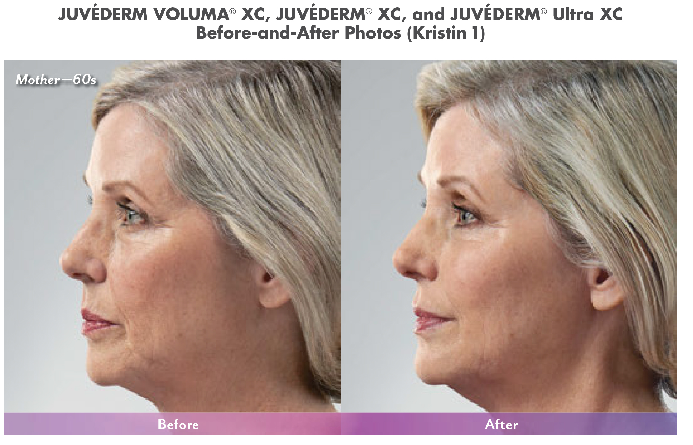 cosmetic fillers juvederm in north dallas 2