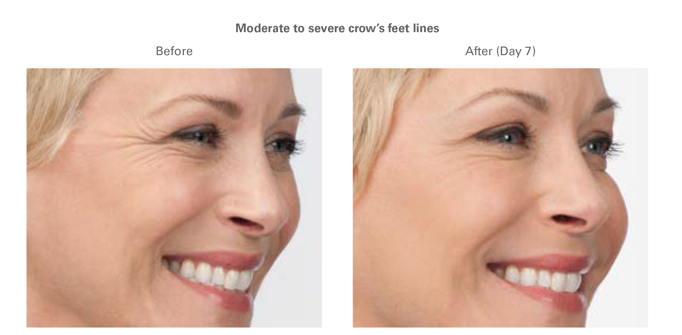 botox for crows feet in north dallas