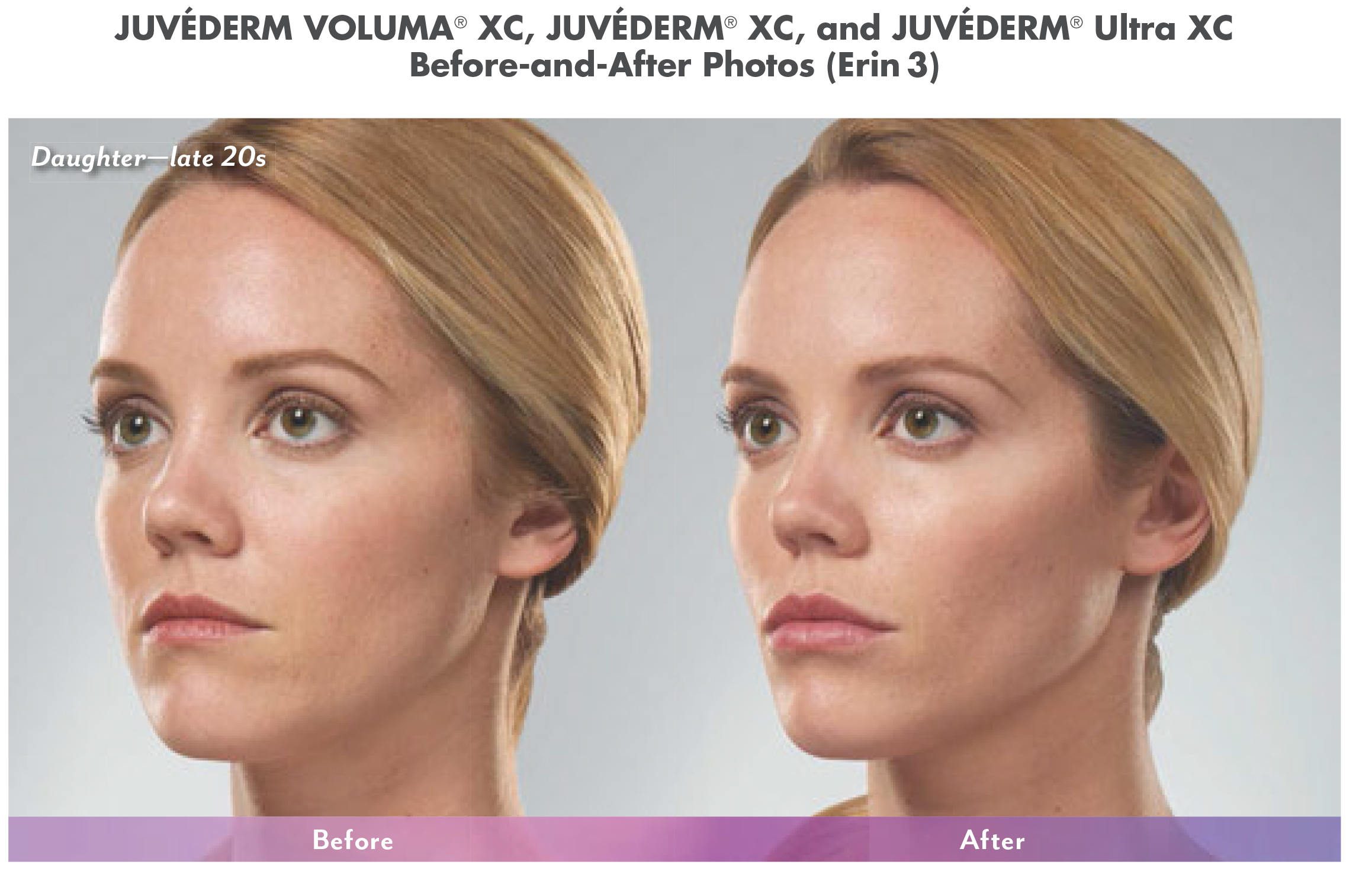cosmetic fillers before and after in north dallas 4