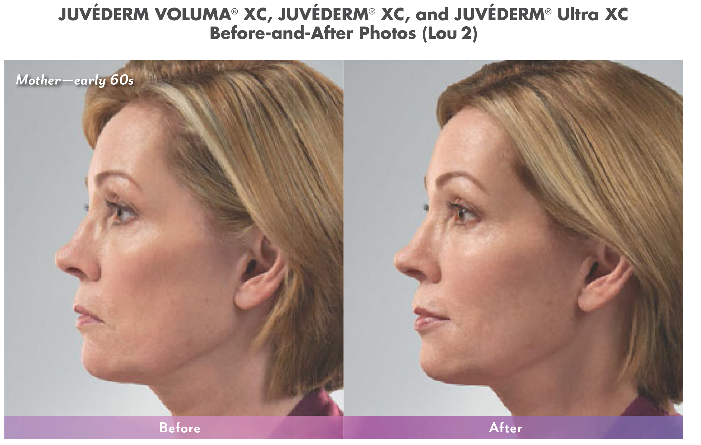 cosmetic fillers before and after in north dallas 3