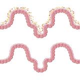 intestines-1468807_1280 (2).png