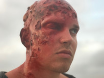 Burn created using silicone, latex, and prosaide transfer prosthetics