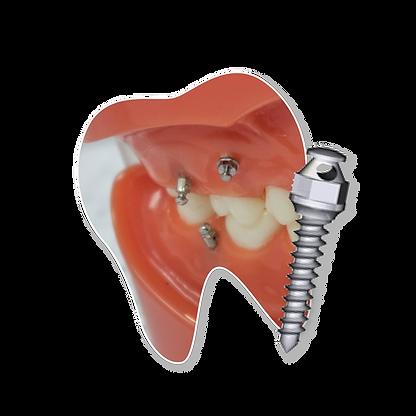ฟัน-DTS.png