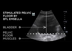 Stimulated-Pelvic-Floor-by-BTL-Emsella.p