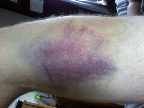 2011 Base coaching bruise day 5.jpg