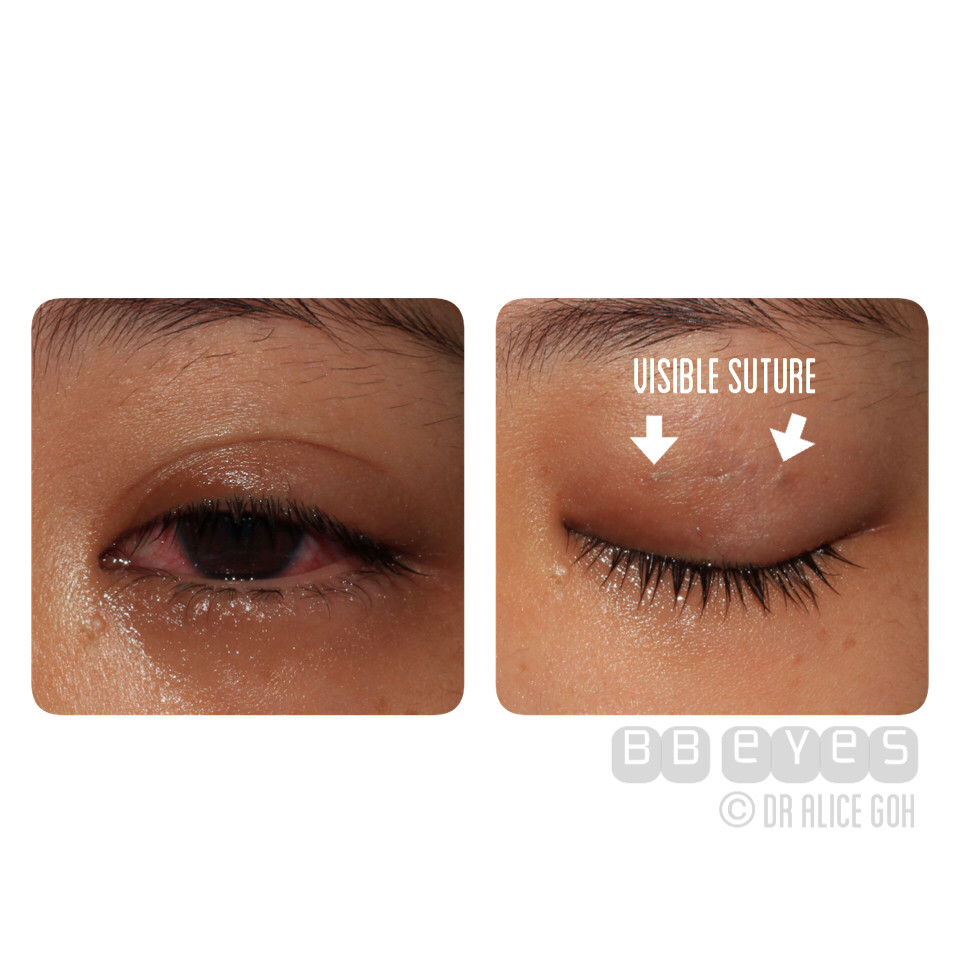What Can Happen If Double Eyelid Procedure Is Not Done Right?