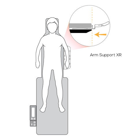 Arm Support XR Daggerboard Placement