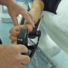 Placing the Patient's Arm in the Armrest