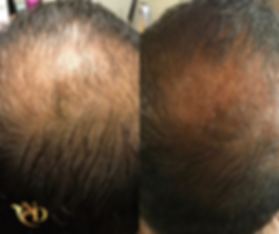 Before and After Image from one Non-Surgical Hair Restoration Treatment with PRP at A New Dawn Wellness Center in Scottsdale, AZ.