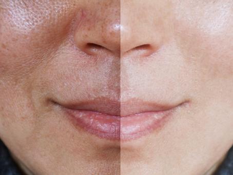 Saiba como prevenir manchas escuras da pele no verão