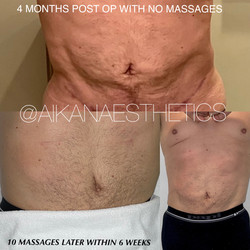 10 massages within 6 weeks