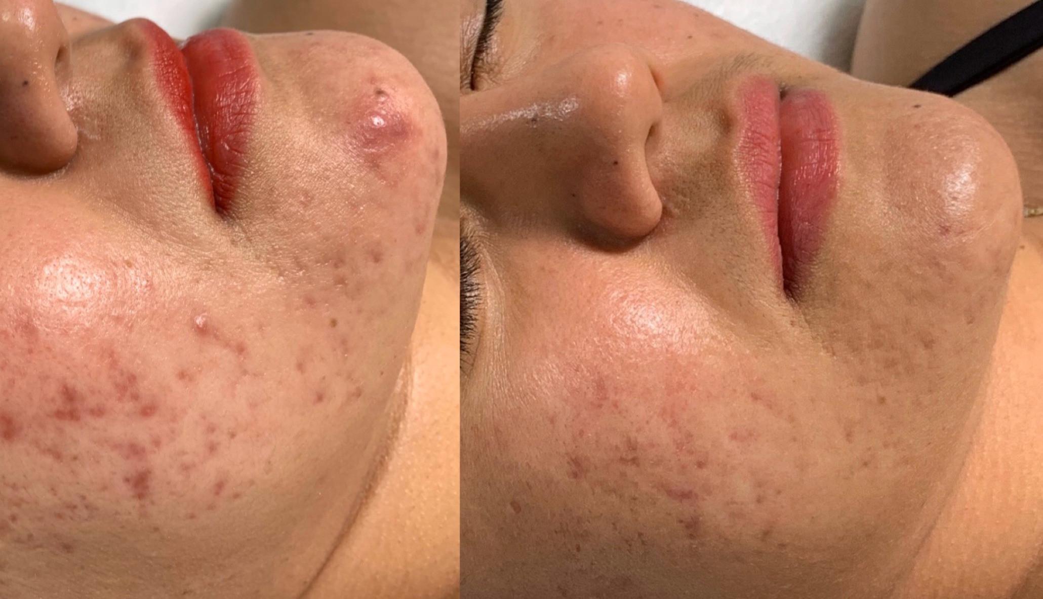 Aikana Signature Facial