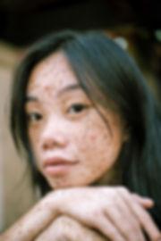 acne huidstudio eline.jpg