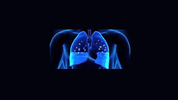 Πνευμονικό οίδημα.JPG