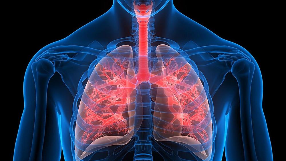 Η ιδιοπαθής πνευμονική ίνωση