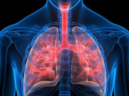 Πνευμονική Ίνωση