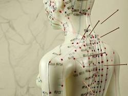 acupuntura maniki