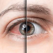 dry-eye-dry-mouth-sjogrens-syndrome-test