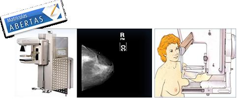 mamografia_01_png.png