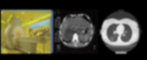 tomografia_comp_01_png.png