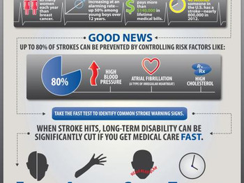 Stroke and Exercise: What are the benefits?