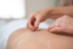 Wellness Centre Dumfries Acupuncture Lyn