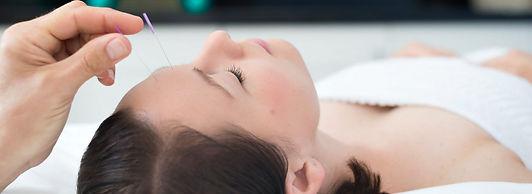 Acupuncture Wellness Centre Dumfries.jpg