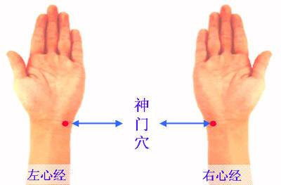 acupuncture point shenmen