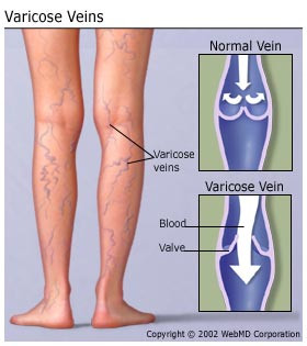 Varicose Veins, photo courtesy WebMD (http://www.webmd.com/skin-problems-and-treatments/understanding-varicose-veins-basics)
