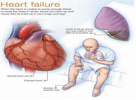 Heart_Failure_Book-14 copy.jpg