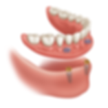 locator denture.png