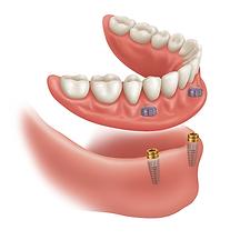 snap in dentures Edmonton