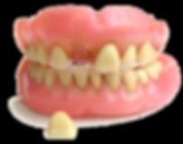 3 Denture-Repairs-.png