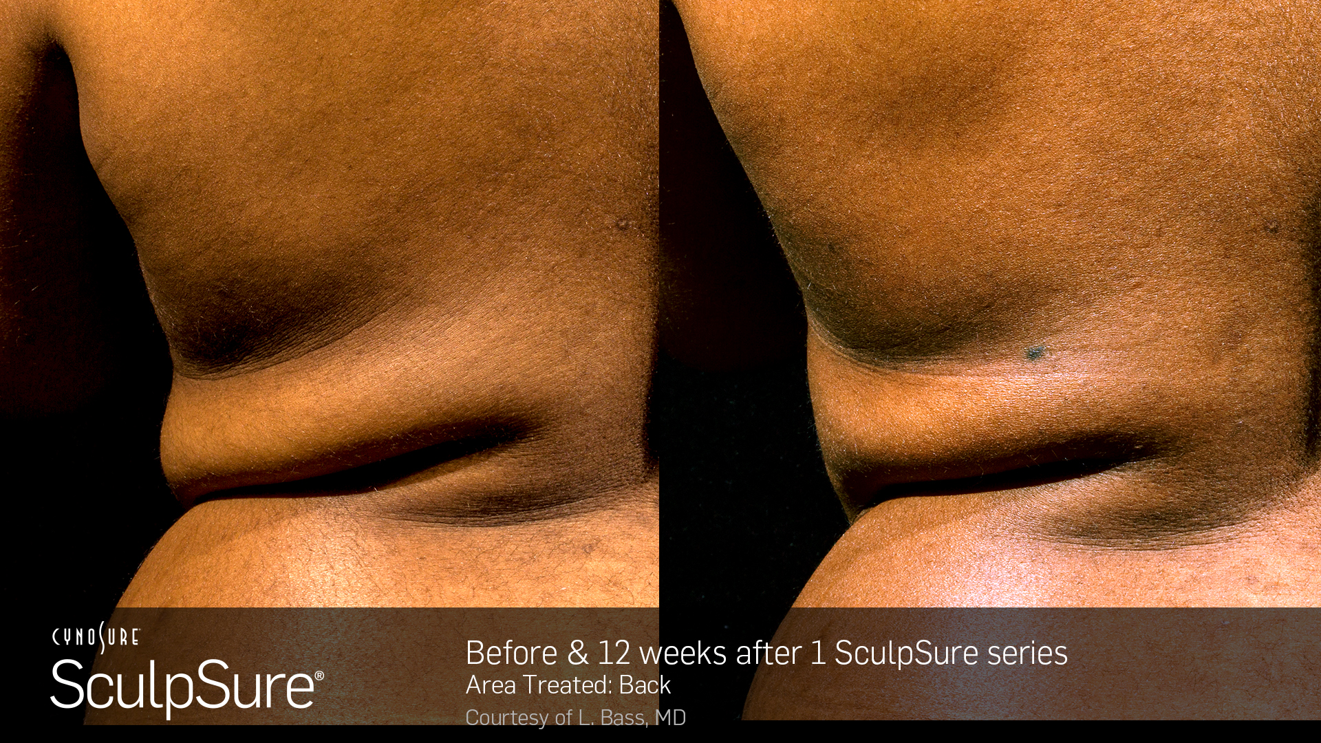 BA_SculpSure_S.Doherty_Back_1tx_12weeks_03_06