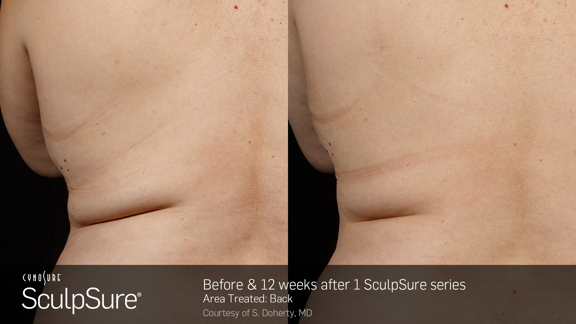 BA_SculpSure_S.Doherty_Back-2_1tx_12weeks.2