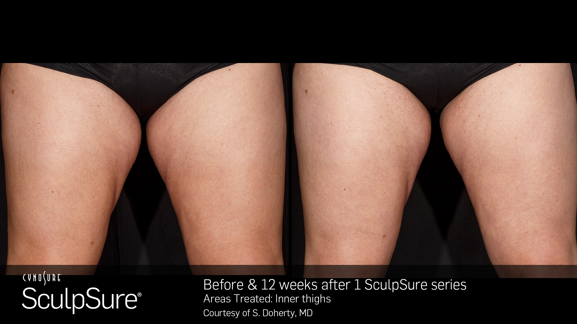 BA_SculpSure_S.Doherty_InnerThigh_1tx_12weeks_19_SM