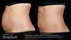 SculpSureBefore&After_SidebySide_Female1.2