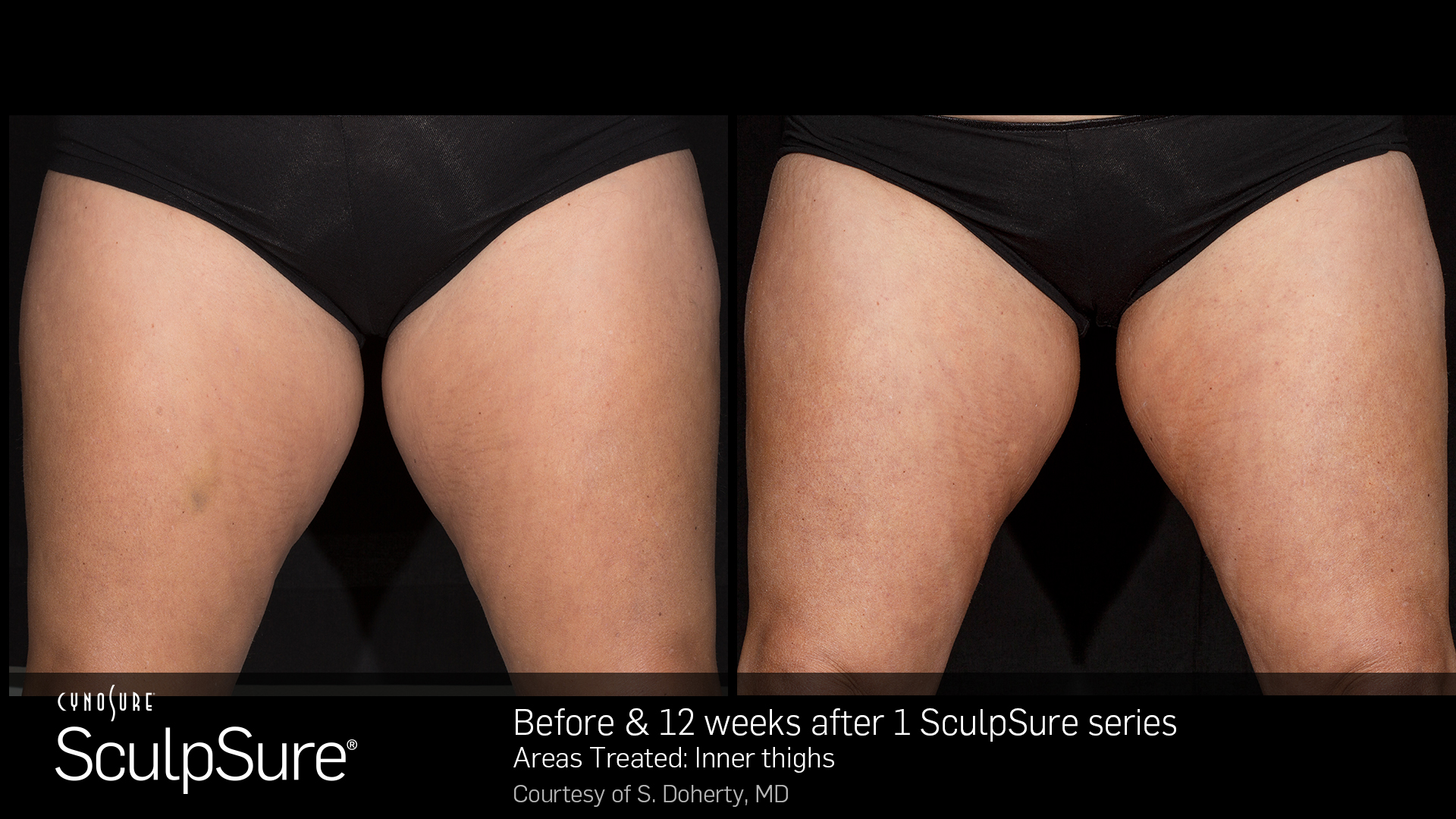 BA_SculpSure_S.Doherty_InnerThigh_1tx_12weeks_KH (1)