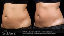 SculpSureBA_SidebySide_Female10