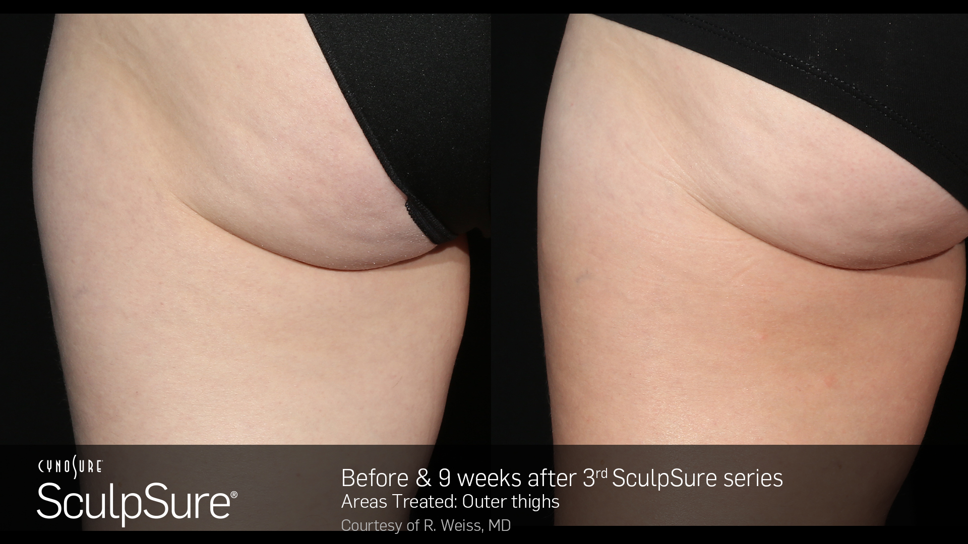 BA_SculpSure_R.Weiss_OuterThigh_3tx_9weeks (1)