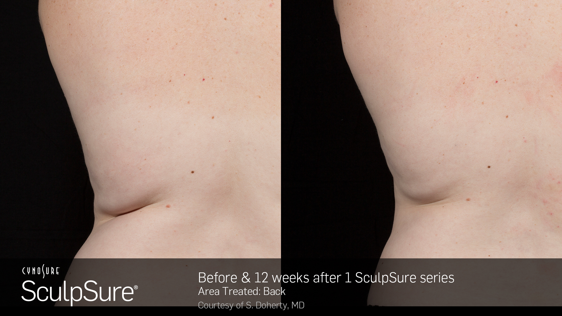 BA_SculpSure_S.Doherty_Back_1tx_12weeks_13_JR