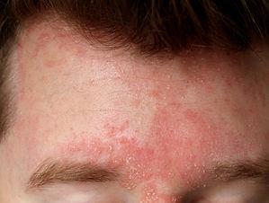 dermatitis seborreica 2.jpg